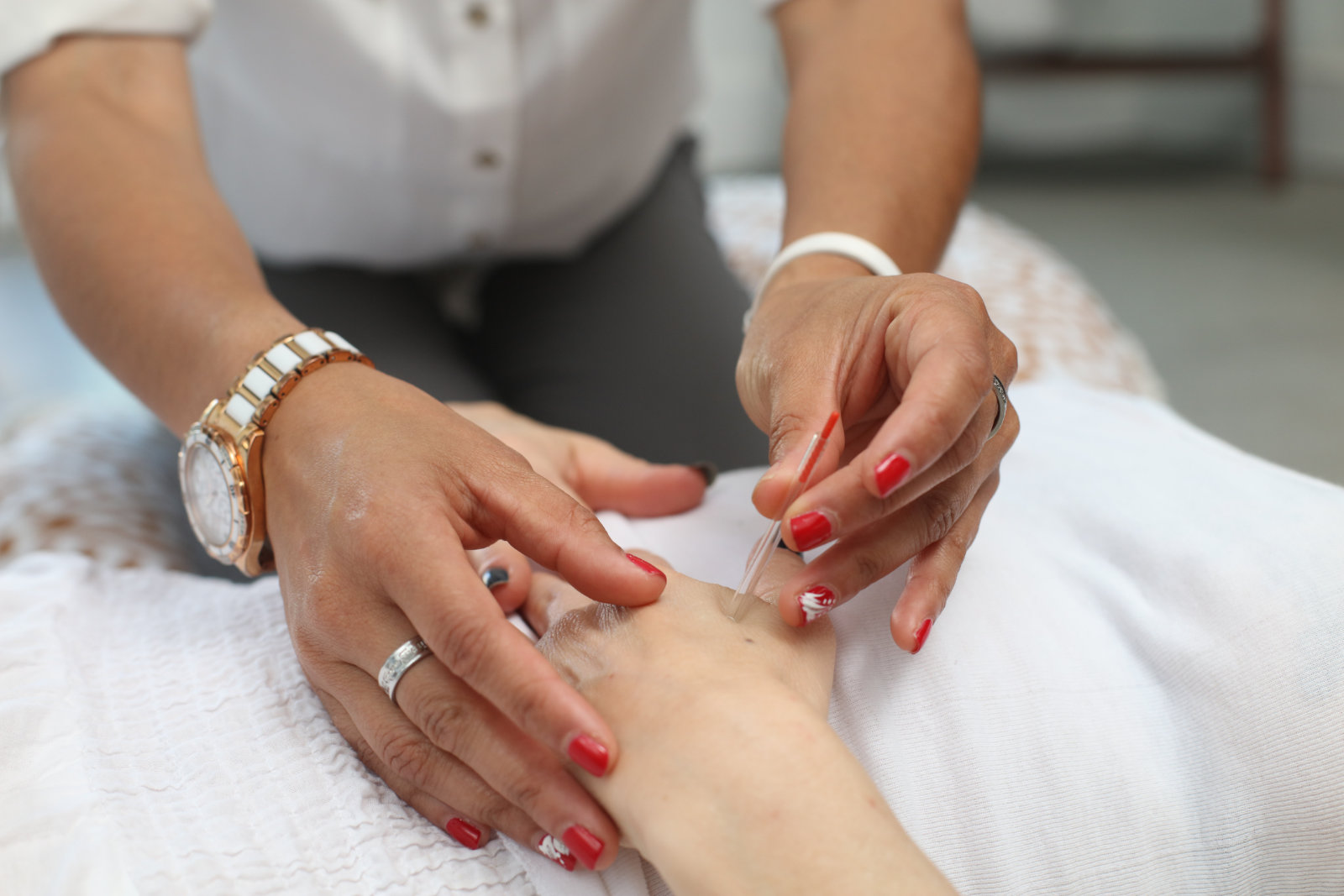 An acupuncturist administers needle treatment to a patient's hand.